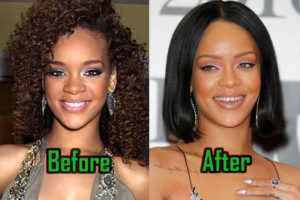 Rihanna Plastic Surgery Photo
