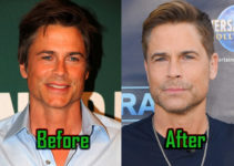 Rob Lowe Surgery Photo