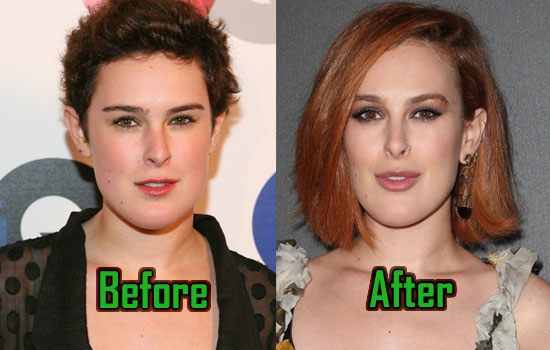 Rumer Willis Plastic Surgery Reduced Her Jaw Before After