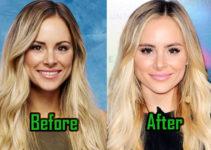 Amanda Stanton Plastic Surgery