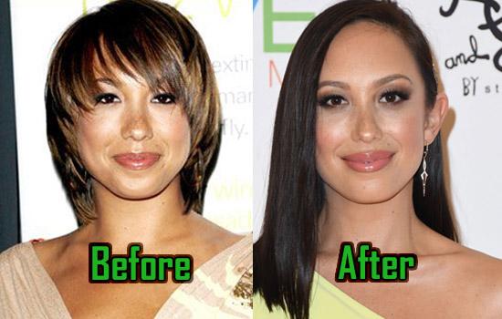 Cheryl Burke Plastic Surgery