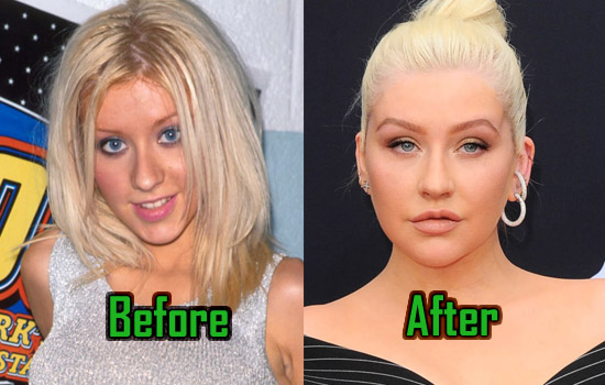 Christina Aguilera Plastic Surgery Photo