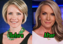 Laura Ingraham Plastic Surgery For Facelift Before After