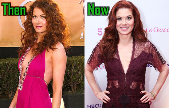Debra Messing Plastic Surgery Nose Job And Eye Lift