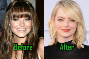 Emma Stone Plastic Surgery