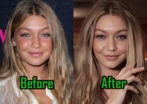 Gigi Hadid Plastic Surgery