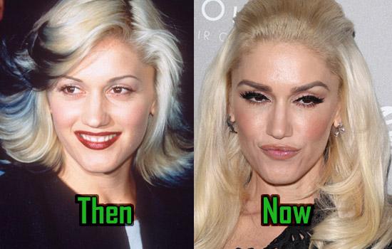 Gwen Stefani Nose Job