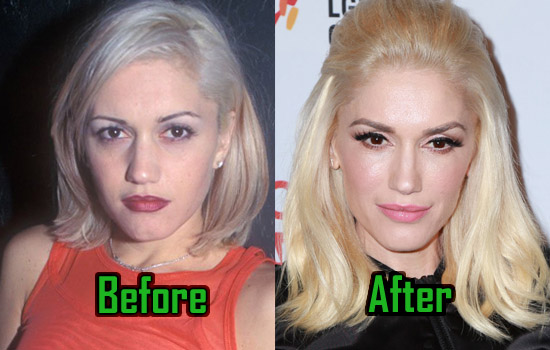 Gwen Stefani Plastic Surgery Facelift Nose Job Before