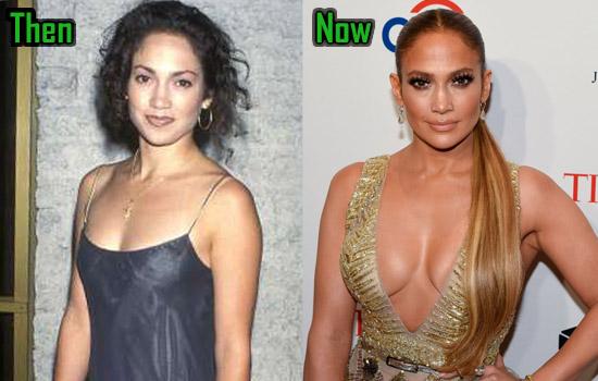 Jennifer Lopez Surgery, Boob Job
