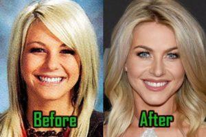 Julianne Hough Plastic Surgery
