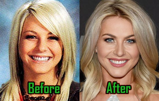 julianne hough plastic surgery nose job and botox before