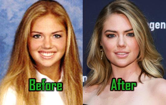 Kate Upton Plastic Surgery