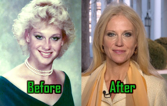 Kellyanne Conway Plastic Surgery