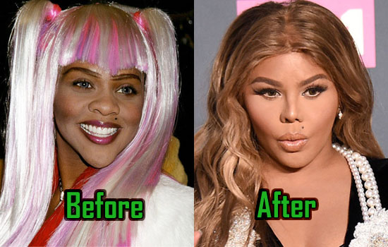 Lil Kim Plastic Surgery