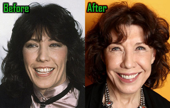 Lily Tomlin Eyelid Surgery, Facelift