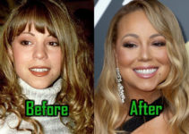 Mariah Carey Plastic Surgery Photo