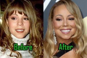 Mariah Carey Plastic Surgery Photo