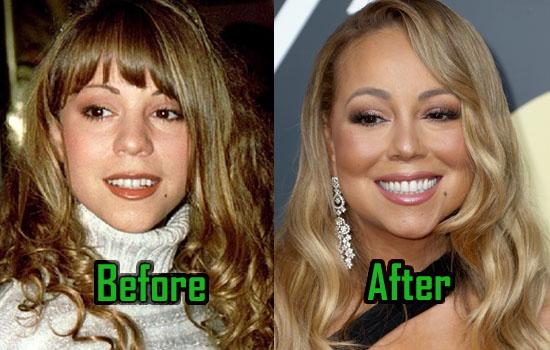 Mariah-Carey-Plastic-Surgery.jpg