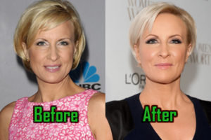 Mika Brzezinski Plastic Surgery Photo