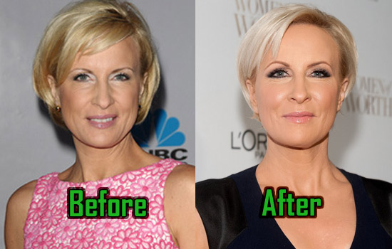 Mika Brzezinski: Plastic Surgery for Facelift? Before-After!