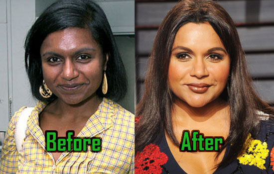 Mindy Kaling Plastic Surgery
