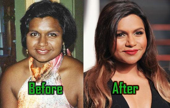 Mindy Kaling Surgery, Botox