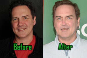 Norm Macdonald Plastic Surgery