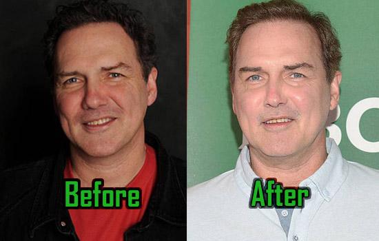 Norm Macdonald Plastic Surgery