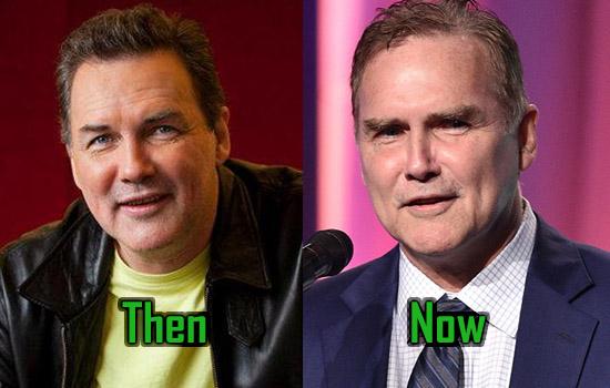 Norm Macdonald Surgery, Botox