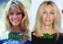 Heather Locklear Plastic Surgery Photo