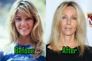 Heather Locklear Plastic Surgery Photo