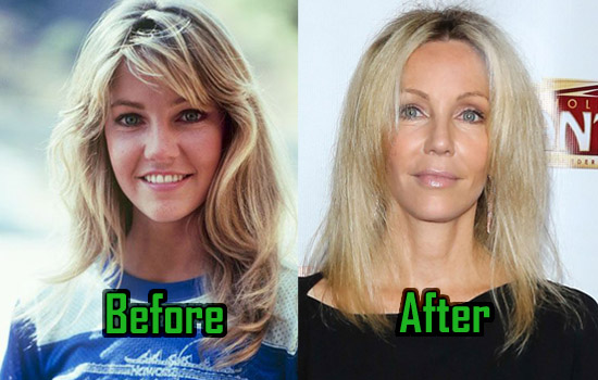 Heather Locklear Plastic Surgery