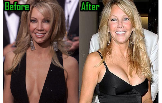 Heather Locklear Surgery, Boob Job