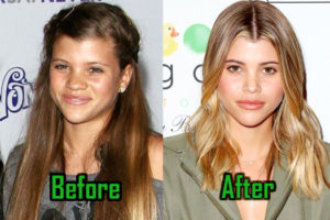 Sofia Richie Plastic Surgery, Before and After