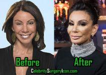 Danielle Staub Plastic Surgery