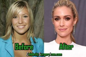 Kristin Cavallari Plastic Surgery, Before and After