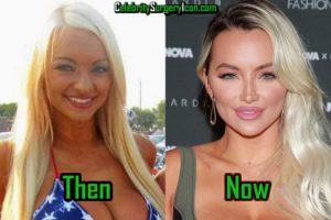 Lindsey Pelas Before and After Surgery Picture