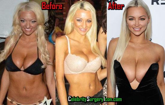 Lindsey Pelas Plastic Surgery Photos