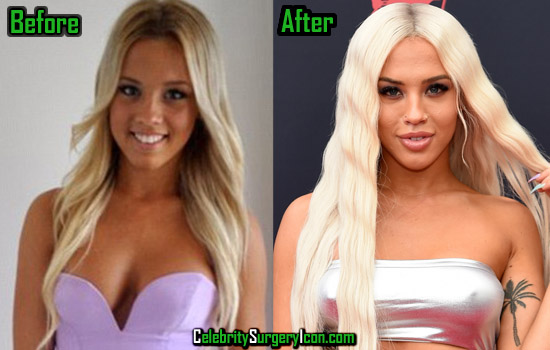 Tammy Hembrow Before After Surgery Picture