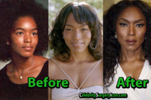 Angela Bassett Plastic Surgery Images