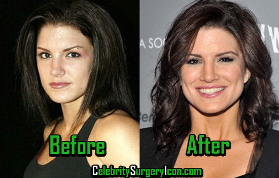 Gina Carano Plastic Surgery, Before and After