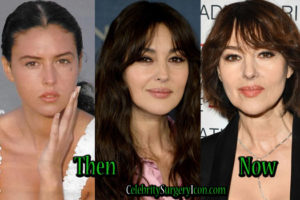 Monica Bellucci Plastic Surgery Before After