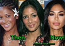 Nicole Scherzinger Plastic Surgery, Nose Lips Job, Then and Now Pictures