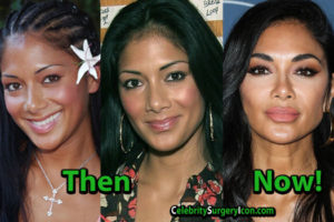 Nicole Scherzinger Plastic Surgery, Nose Lips Job, Then and Now Pictures