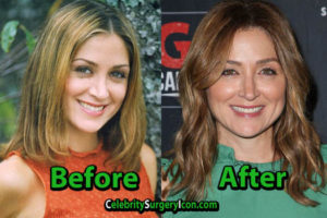 Sasha Alexander Surgery Nose Job
