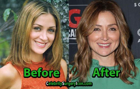 Sasha Alexander Surgery Nose Job