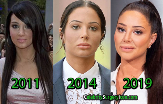 Tulisa Plastic Surgery, Before and After Pictures