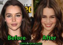Emilia Clarke Plastic Surgery Photo
