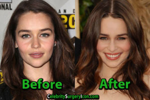 Emilia Clarke Plastic Surgery Photo